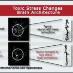 Buffering the mind from toxic stress